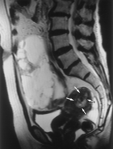 Ct And Mr Imaging Of Ovarian Tumors With Emphasis On Differential Diagnosis Radiographics