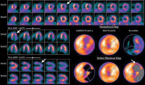 Interpretation Of Spect Ct Myocardial Perfusion Images Common Artifacts And Quality Control Techniques Radiographics