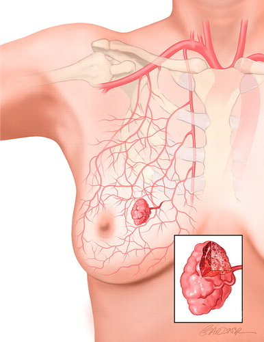 Vascular Abnormalities Of The Breast Arterial And Venous