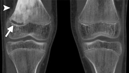 Taking The Stress Out Of Evaluating Stress Injuries In Children Radiographics