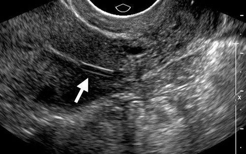 Polycystic Ovarian Syndrome Role Of Imaging In Diagnosis Radiographics